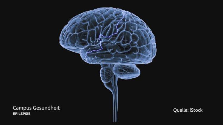 Epilepsie - Gewitter im Kopf