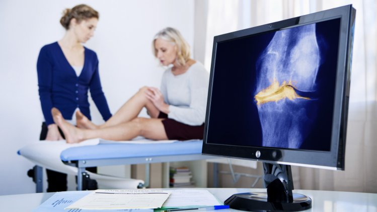 Behandlungswege bei Arthrose