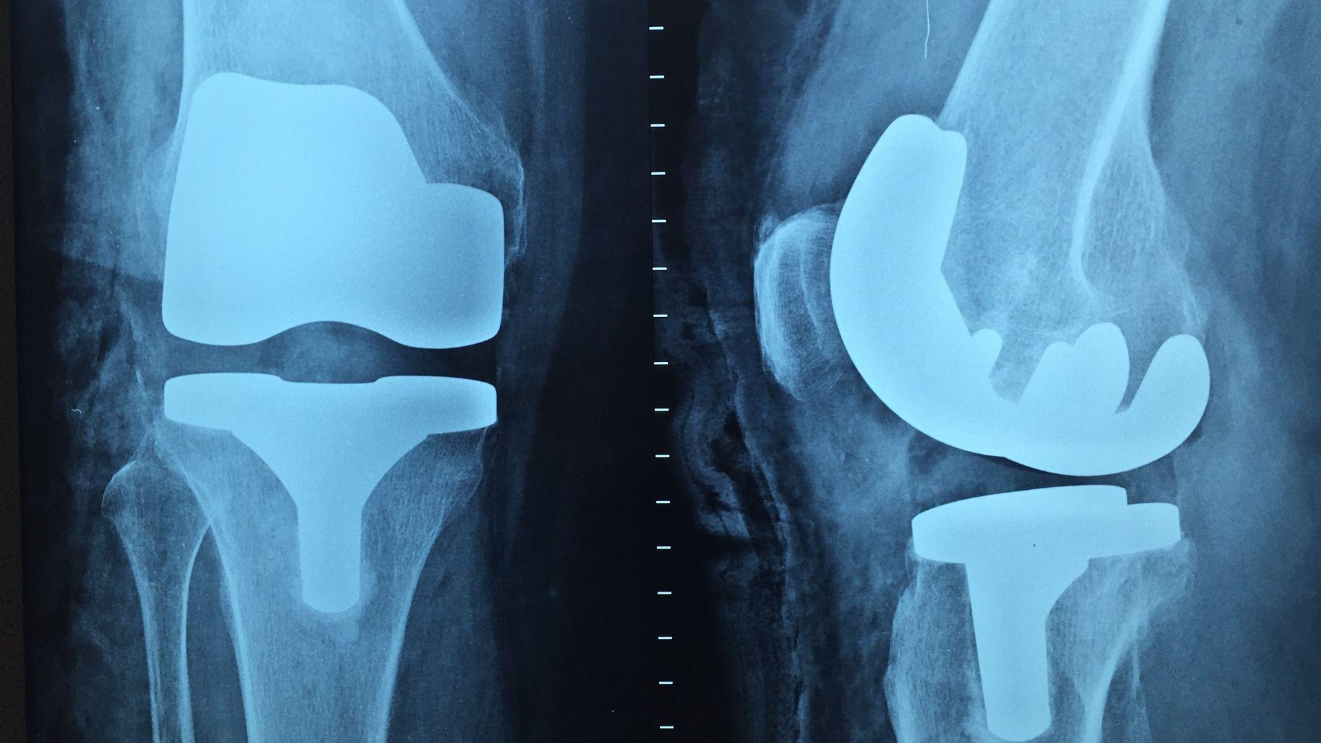 Klinik-Karrieren: Urologie und Orthopädie