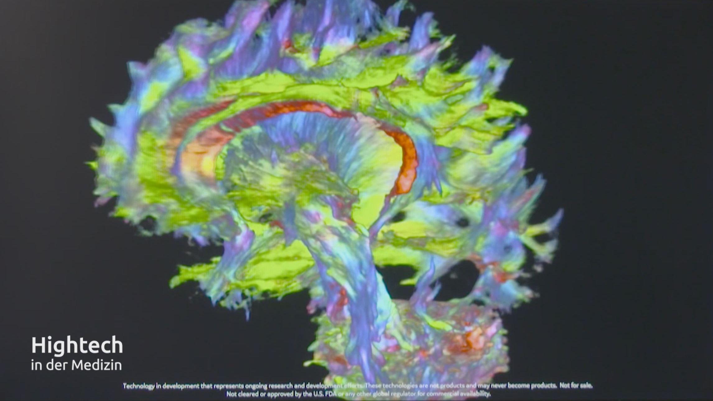 Entwicklung der Magnet-Resonanz-Tomographie