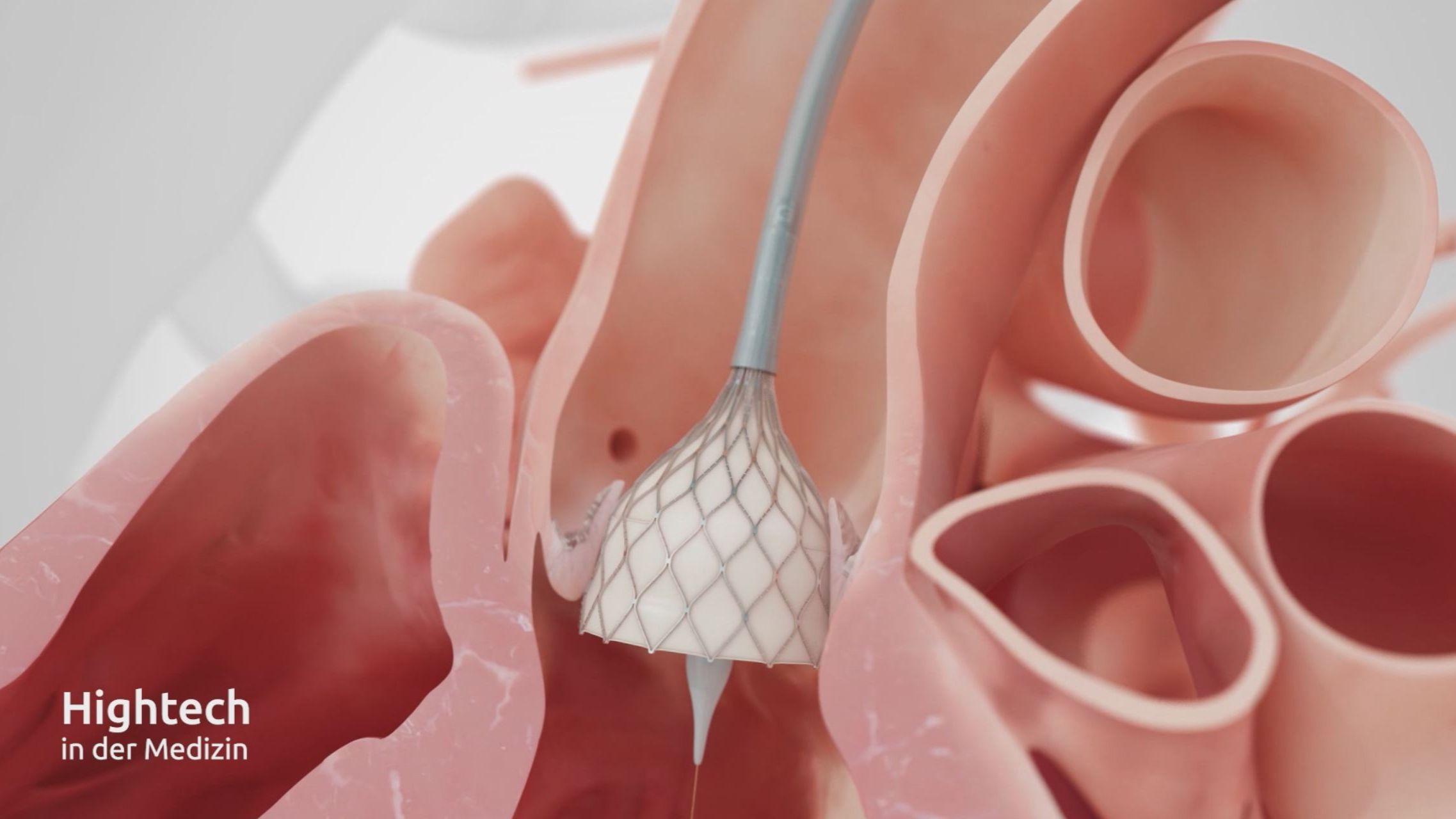 Entwicklung der künstlichen Aortenklappe