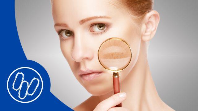 Gesundes Hautmikrobiom kann vor Hauterkrankungen schützen
