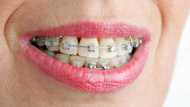 Wie Zahnspangen bei Erwachsenen helfen