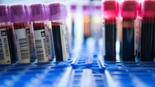 Bluttest soll Vielzahl von Krebsarten erkennen
